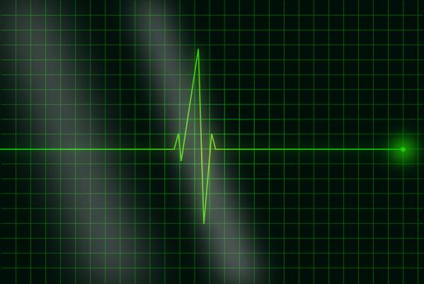 electrocardiogramme prouvant que la vie est pleine de relief